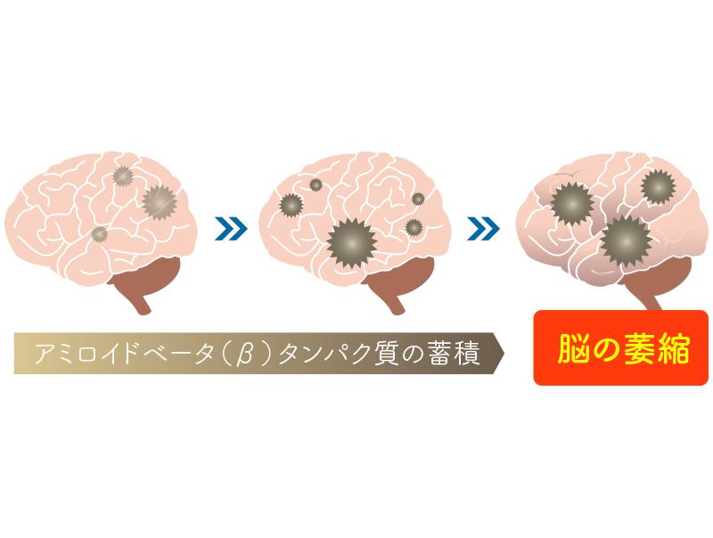 アルツハイマー型認知症の経過
